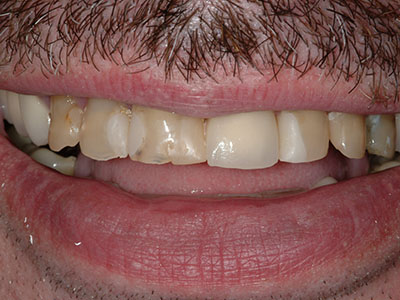 Before Full Anterior Crowns by Dr. Brian Alder