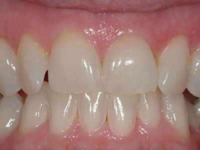 Before an Anterior Veneer by Dr. Brian Alder