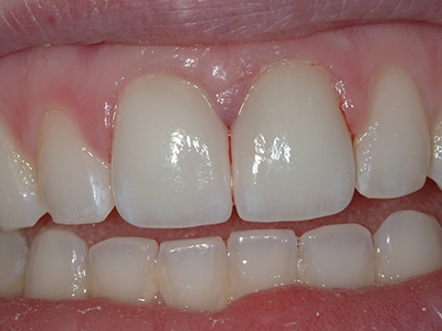 After Replacement of a Fractured Cerec Crown by Dr. Brian Alder