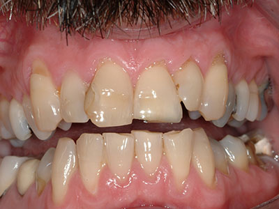 Before Full Cosmetic Dentistry with Anterior Crowns and Veneers by Dr. Brian Alder