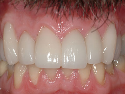 After Full Cosmetic Dentistry with Anterior Crowns and Veneers by Dr. Brian Alder