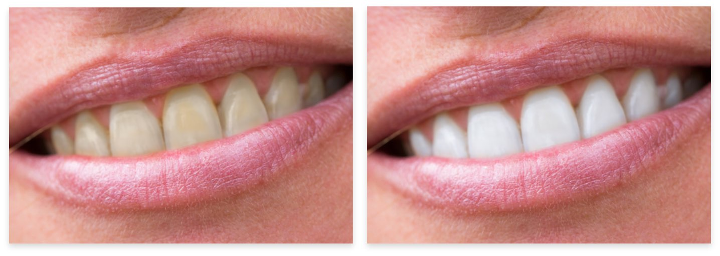 Close up before and after smile gallery photos