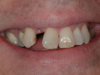 Before Tooth Replacement with a Full Porcelain Bridge by Dr. Brian Alder