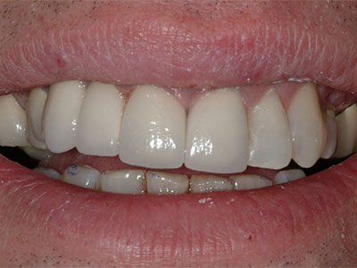 After Tooth Replacement with a Full Porcelain Bridge by Dr. Brian Alder